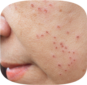 Outside in - Inside Out - image of rash on face indicating that body has language to reveal what's going on inside